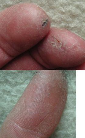 finger.jpg.b49e3847b3b1ac735ba8d68363dbd418.jpg